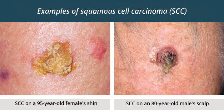 Examples of squamous cell carcinoma. Image on the left shows an SCC on a 95-year-old female's shin. Image on the right shows an SCC on an 80-year-old male's scalp.